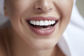 Healthy white smile close up. Beauty woman with perfect smile, lips and teeth. Beautiful Model Girl with perfect skin. Teeth whitening. (Healthy white smile close up. Beauty woman with perfect smile, lips and teeth. Beautiful Model Girl with perfect s