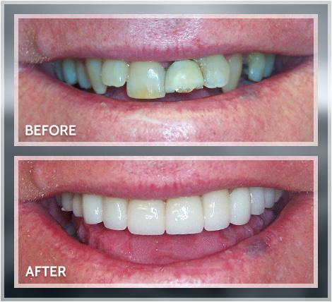 Dental Implants Dentures New Image Advanced Dental