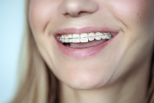 Braces, treatment for a crooked teeth, closeup photo of a beautiful smile of a young woman with white clean teeth, aesthetic dentistry and dental care concept (Braces, treatment for a crooked teeth, closeup photo of a beautiful smile of a young woman